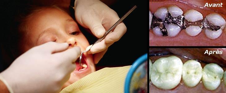 Reconnu très nocif pour la santé, le mercure continu d'être massivement utilisé comme amalgame dentaire